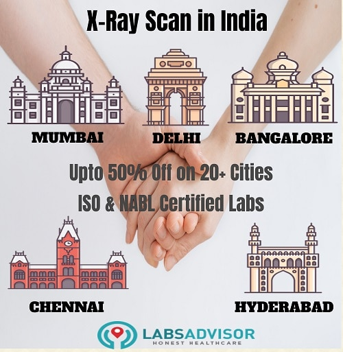 Lowest X Ray cost in India!