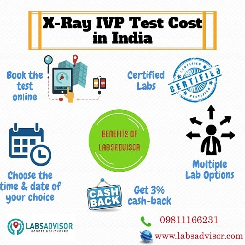 Know more about the benefits of booking your IVP Test through LabsAdvisor. Get the lowest IVP Test cost in India