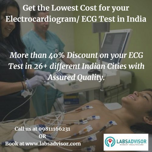 Find best labs and book the lowest ECG test cost with preferred time slot exclusively through LabsAdvisor.
